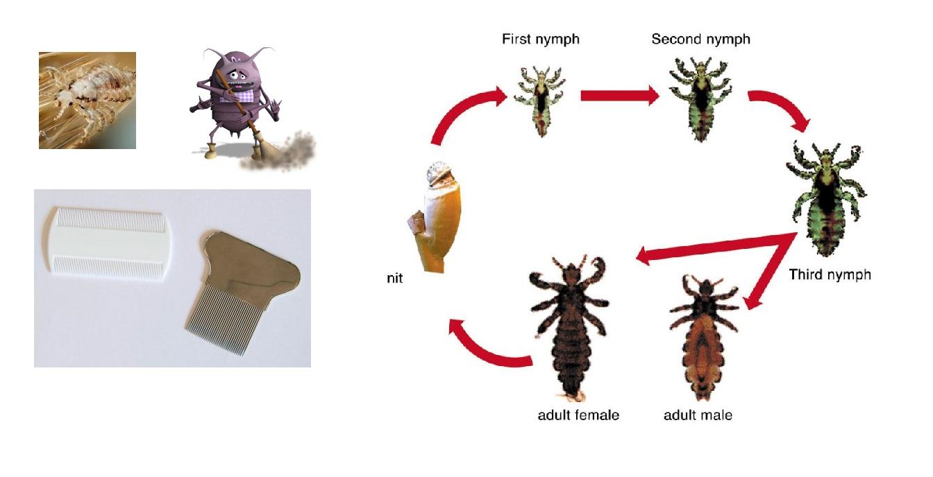 صوره علاج القمل , وصفه فعالة لعلاج القمل وبيضه