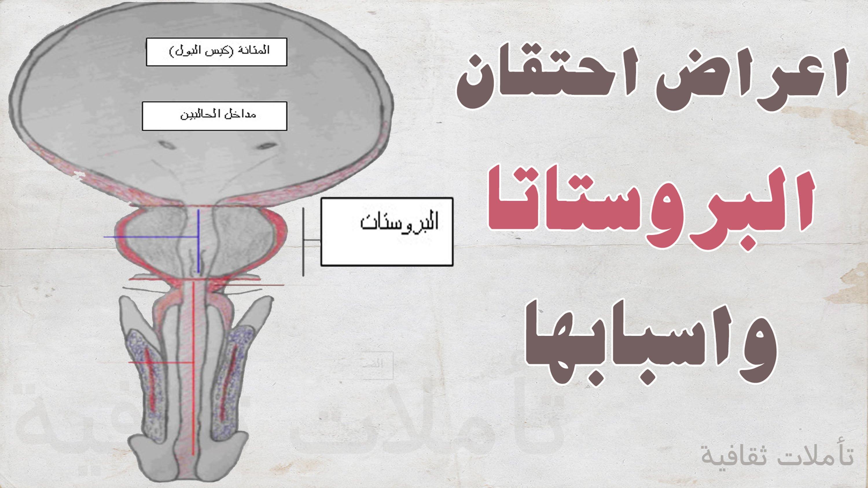 صوره اعراض البروستاتا , ماهى اعراض مرض البروستاتا