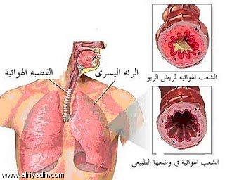 صوره مرض الدرن , ماهى اعراض مرض الدرن