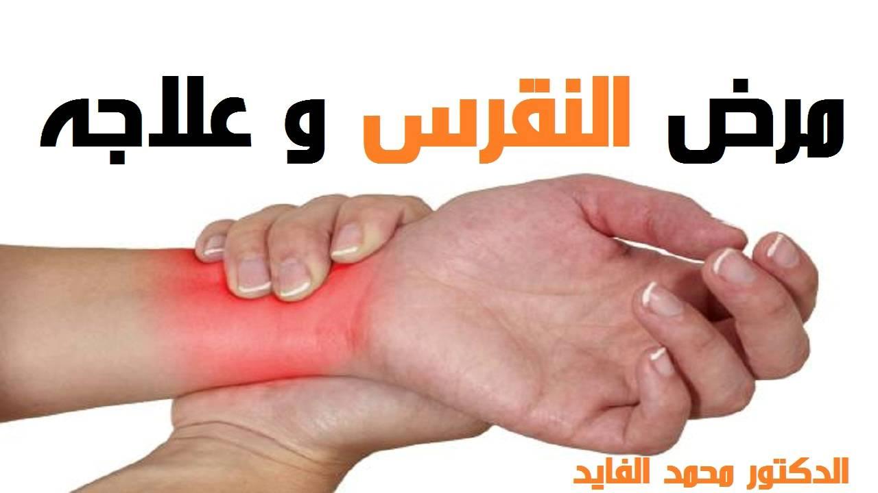 بالصور ما هو مرض النقرس , اسباب مرض النقرس 3420 1