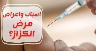 مرض الكزاز , ماهو اعراض مرض الكزاز