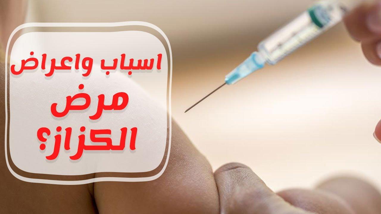صورة مرض الكزاز , ماهو اعراض مرض الكزاز