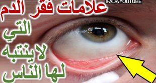 اعراض فقر الدم , اسباب مرض فقر الدم عن الانسان