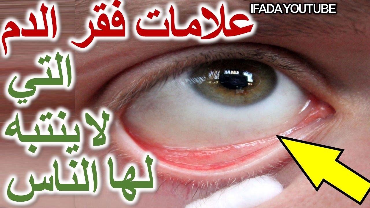 صورة اعراض فقر الدم , اسباب مرض فقر الدم عن الانسان