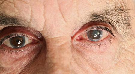 صورة المياه البيضاء , مرض المياة البيضاء علي العين