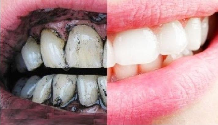 صور كيفية تبييض الاسنان , تبيض الاسنان في المنزل