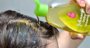 علاج لتساقط الشعر , الحد من تساقط الشعر