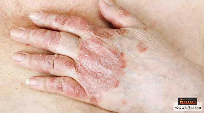 بالصور مرض الصدفية , ماهى الاسباب المؤدية لمرض الصدفية 1043