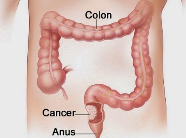 صور اعراض سرطان القولون , كيف اعرف اني مصاب بسرطان القولون