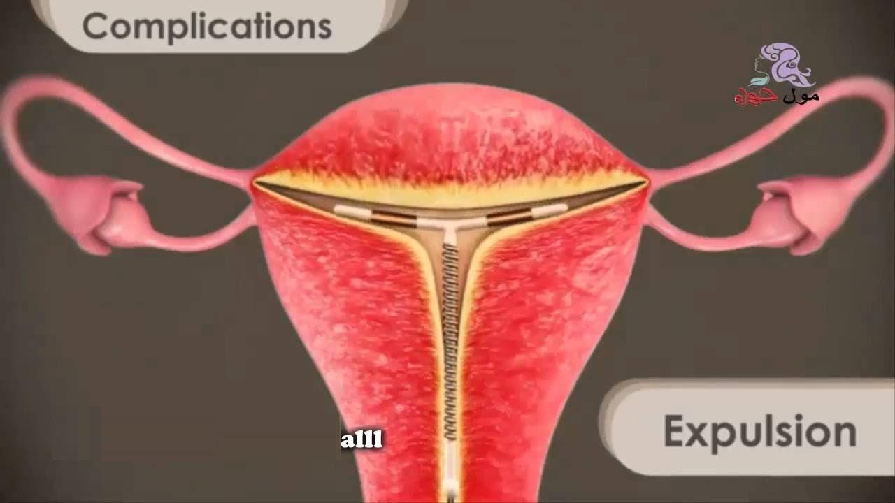 صورة اضرار اللولب , اضرار موانع الحمل المختلفه 2650
