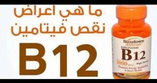 بالصور اعراض نقص فيتامينات الجسم , تعرف على الاعراض الصحية لنقص الفتيامينات 2938 3 310x165