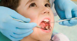 علاج وجع الاسنان , اسرع علاج لوجع الاسنان