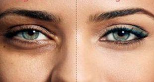 صورة الهالات السوداء تحت العين , اسباب ظهور هالات سوداء تحت العين
