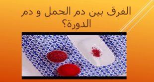 بالصور الفرق بين دم الدورة ودم الحمل , كيفيه التمييز بين دم الحيض ودم الحمل 5949 3 310x165