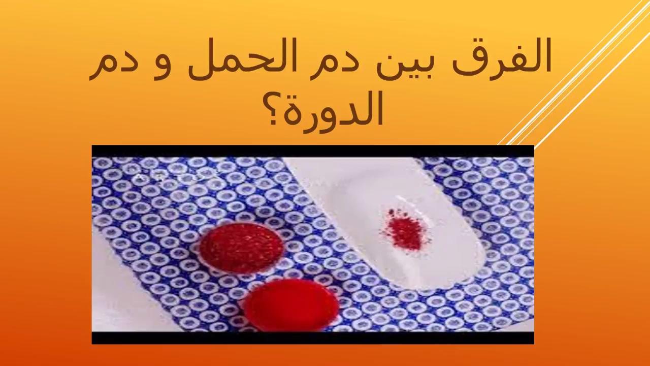 بالصور الفرق بين دم الدورة ودم الحمل , كيفيه التمييز بين دم الحيض ودم الحمل 5949