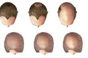 صورة علاج تساقط الشعر , علاجات تساقط الشعر