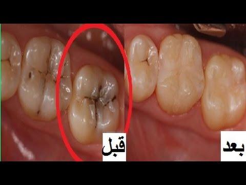 بالصور علاج تسوس الاسنان , طرق للتخلص من تسوس الاسنان 614 1