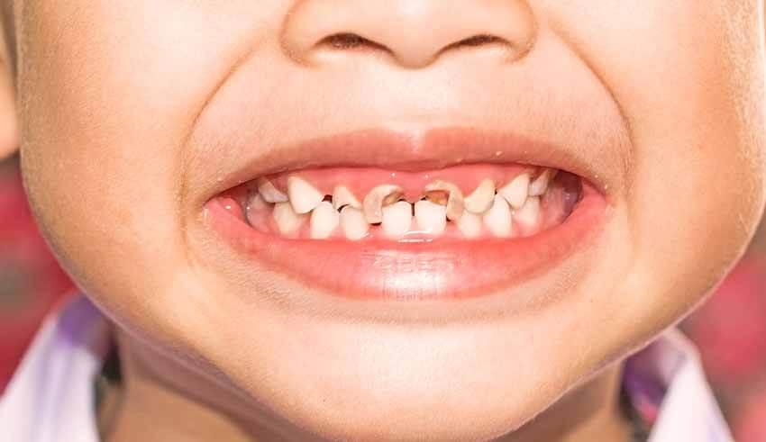 بالصور علاج تسوس الاسنان , طرق للتخلص من تسوس الاسنان 614 2