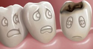 بالصور علاج تسوس الاسنان , طرق للتخلص من تسوس الاسنان 614 3 310x165