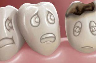 بالصور علاج تسوس الاسنان , طرق للتخلص من تسوس الاسنان 614 3 310x205