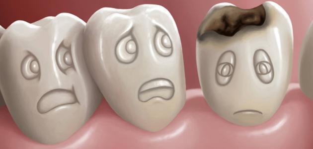 صور علاج تسوس الاسنان , طرق للتخلص من تسوس الاسنان