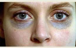 صورة علاج الهالات السوداء , طرق بسيطة لعلاج هالات العين السوداء