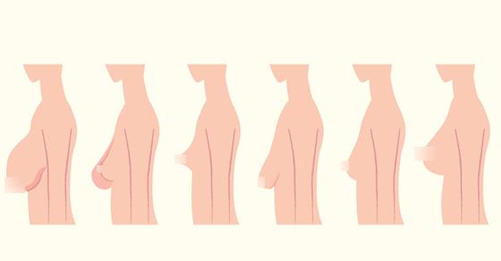 بالصور انواع ثدي المراة بالصور , صور انواع ثدي المراه 815 1