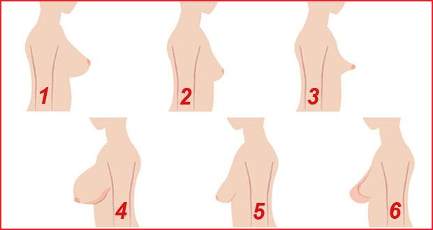 بالصور انواع ثدي المراة بالصور , صور انواع ثدي المراه 815 6