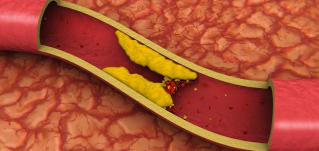 صور نسبة الكولسترول الطبيعي , معدل نسبه الكوليسترول فى الجسم
