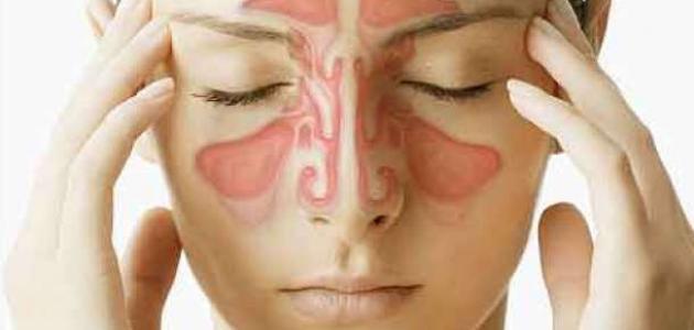 صورة اعراض حساسية الانف , اسباب حساسيه الانف