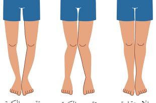 صورة مرض الكساح , علاج لين العظام في الاطفال يقيهم من مشاكله في الكبر