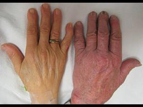 صورة اعراض فقر الدم اثناء الدوره الشهريه , اسباب فقر الدم فى الدورة الشهرية