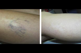 صور علاج دوالي الساقين مجرب , صور توضح شكل الدوالى