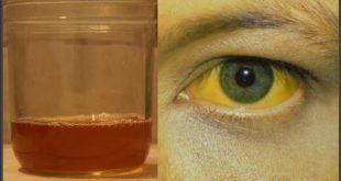 صورة اعراض التهاب الكبد الوبائي , صور توضح اعراض الكبد الوبائى