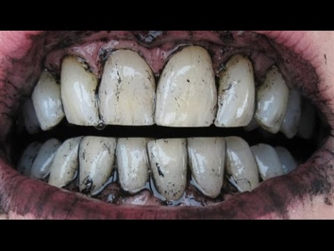 صور طريقة تبييض الاسنان بالفحم , كيفية استخدام الفحم فى تبييض الاسنان