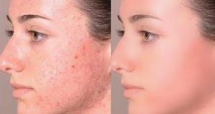 تنظيف الوجه , الطرق البسيطة لتنظيف الوجوه