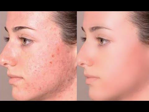 صور تنظيف الوجه , الطرق البسيطة لتنظيف الوجوه