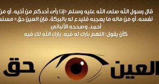 صور اعراض العين والحسد , علامات تدل انك محسود