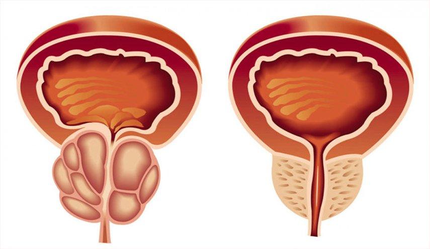 صور علاج البروستاتا , ماوسائل الشفاء من التهاب البروستاتا
