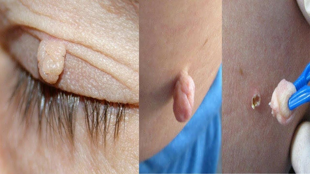 صور علاج الثاليل , طرق التخلص من كتل الجلد الزائد بالجسم