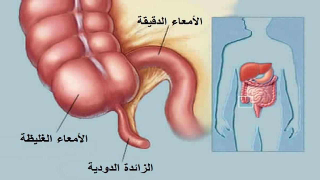 صورة الزائدة الدودية , ماهى الزائده واعراض التهابها