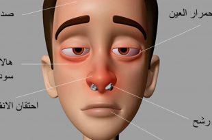 صورة علاج حساسية الانف , طرق للتعافى من الجيوب الانفيه