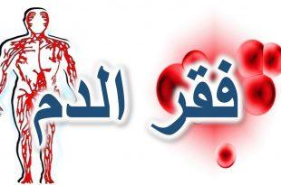 صورة مرض فقر الدم , ماهى الانيميا واسبابها وطرق علاجها