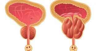 صورة اسباب تضخم البروستاتا , ماهى العوامل التى تؤدى الى التهاب البروستاتا